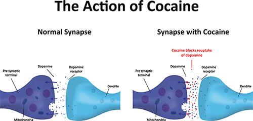 Verve Health Cocaine Addiction